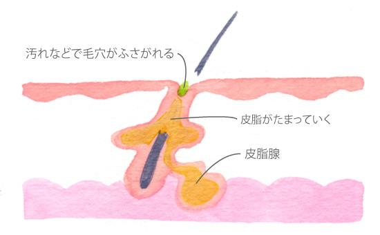 ニキビの初期段階